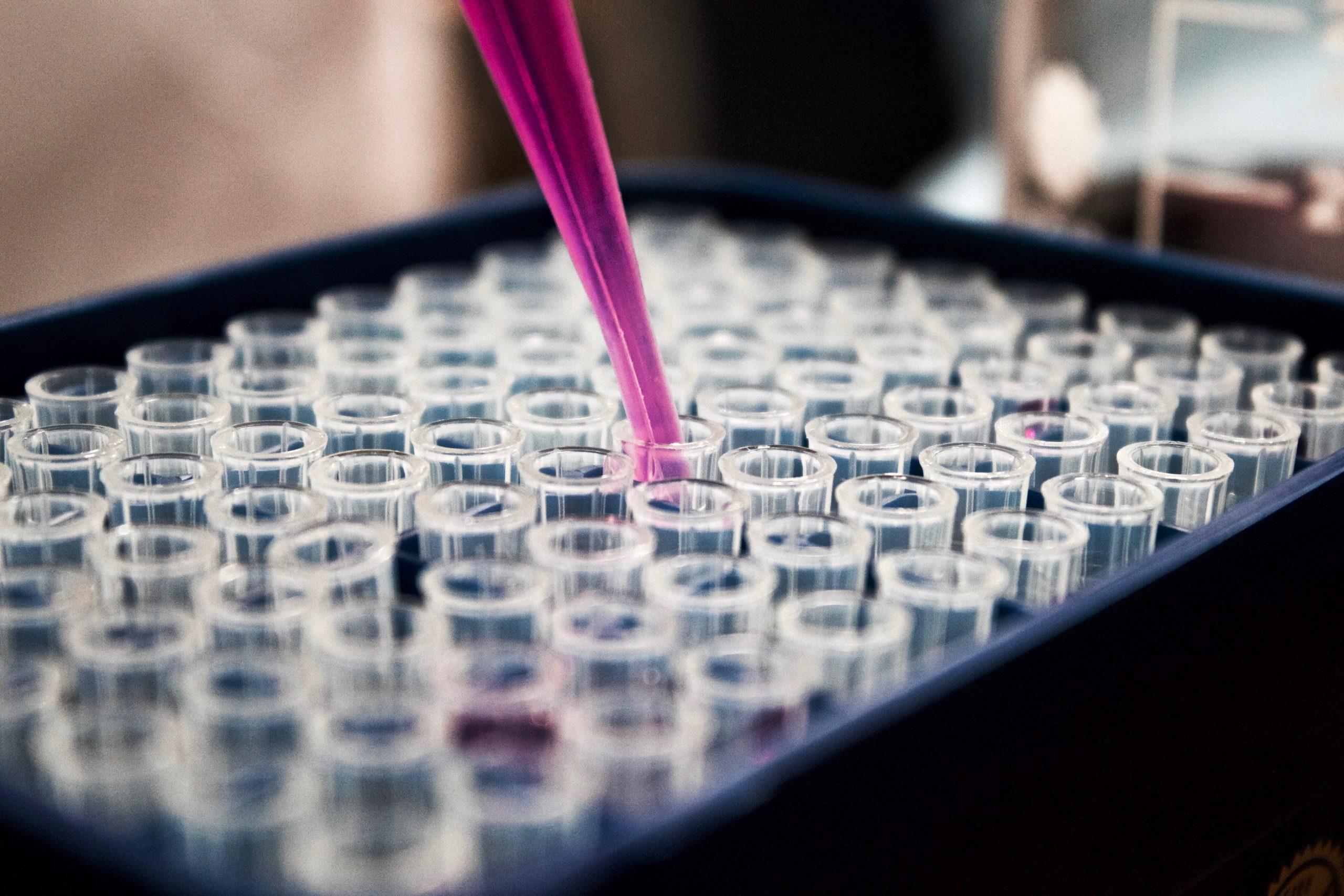מגש מבחנות במעבדה